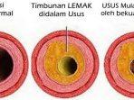 Cara Detoks usus secara Alami