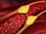 menurunkan-kadar-kolesterol