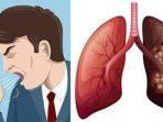 kanker paru-paru